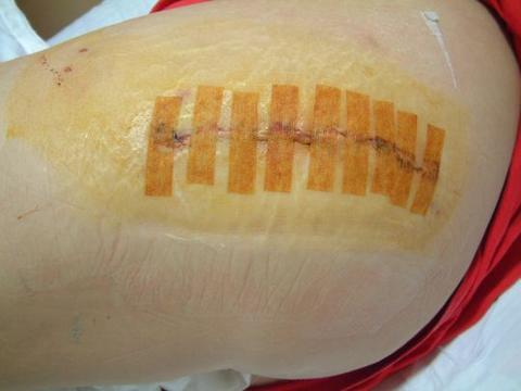 Vicky's 4 inch incision 4 days post op